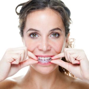 woman putting in clear aligners